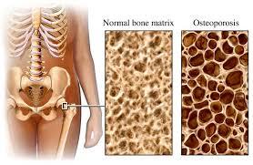 Osteoporosis.